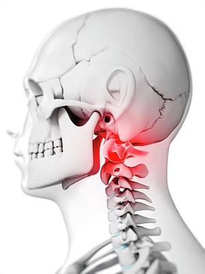 C1 Photograph - Human Neck Bones by Sebastian Kaulitzki