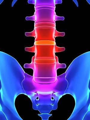 Disc Photograph - Human Spinal Discs by Sebastian Kaulitzki
