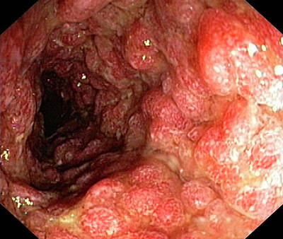 Endoscope View Photograph - Inflammatory Polyps In Ulcerative Colitis by Gastrolab
