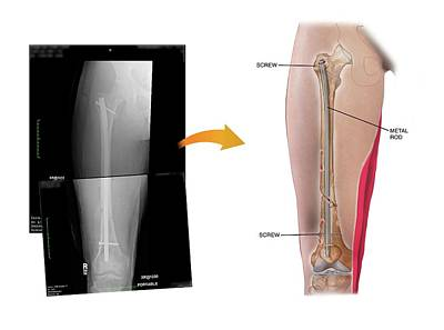 X-rays Of Photograph - Internal Fixation Of Fractured Femur by John T. Alesi