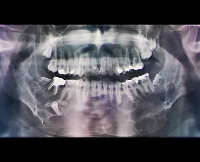 Jaw Cancer (ameloblastoma) Art Print by Zephyr/science Photo Library