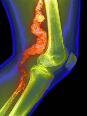 Acdc Photograph - Knee In Acdc by National Human Genome Institute