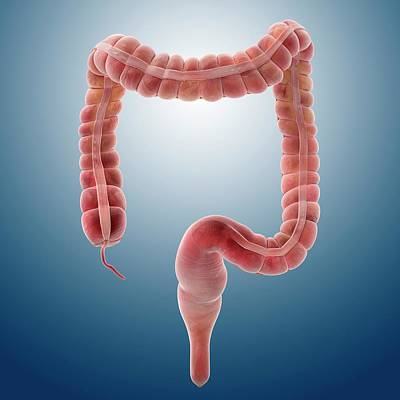 Sigmoid Colon Photograph - Large Intestine by Springer Medizin