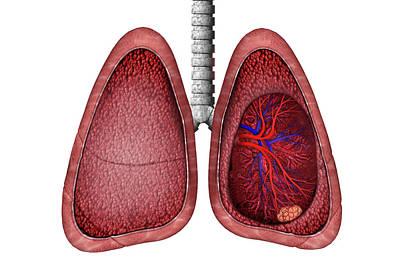 Lung Cancer Art Print