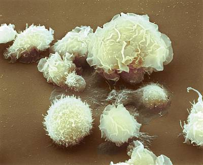Electron Photograph - Monocyte White Blood Cells by Nibsc