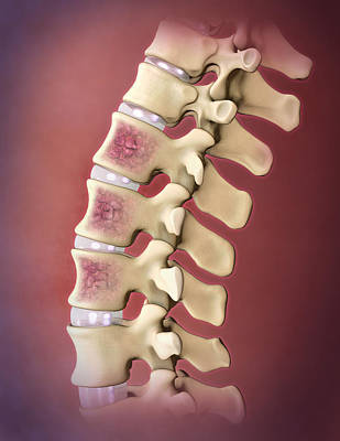 Photograph - Multiple Myeloma, Spine by Evan Oto