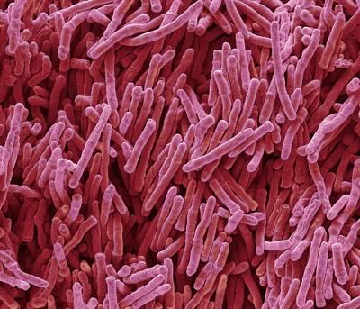 Unicellular Photograph - Mycobacterium Smegmatis Bacteria by Steve Gschmeissner