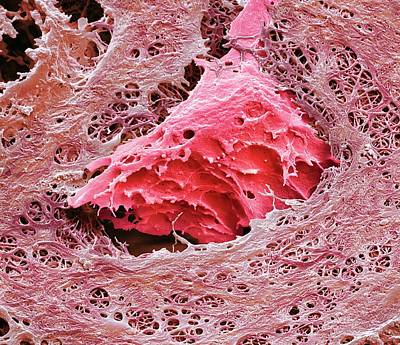 Nasal Cartilage Art Print by Steve Gschmeissner