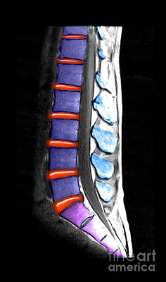 Photograph - Normal Lumbar Spine, Mri by Living Art Enterprises