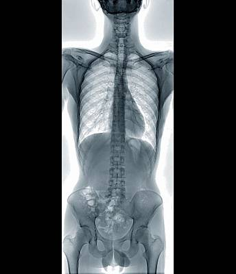 Normal Spine Art Print by Zephyr