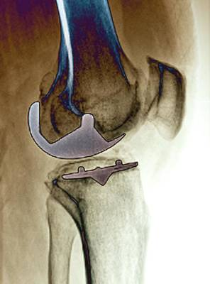 Partial Knee Replacement Art Print by Zephyr