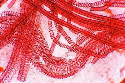 Leaf Ring Photograph - Plant Vascular Bundles by Dr Keith Wheeler