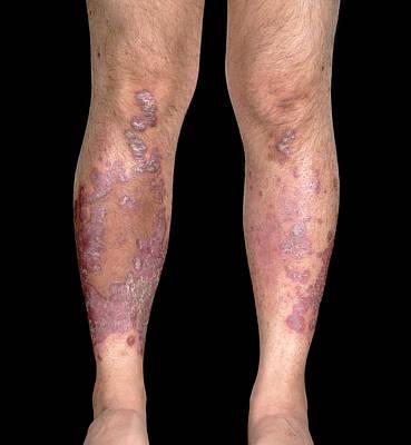 Psoriatic Arthritis Art Print