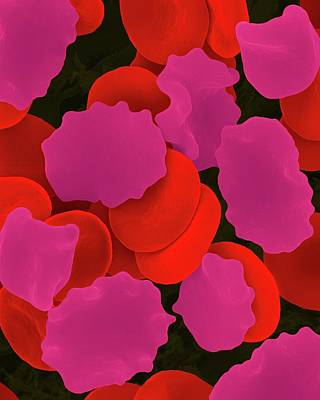 Red Blood Cells In Hypertonic Solution Art Print by Dennis Kunkel Microscopy/science Photo Library