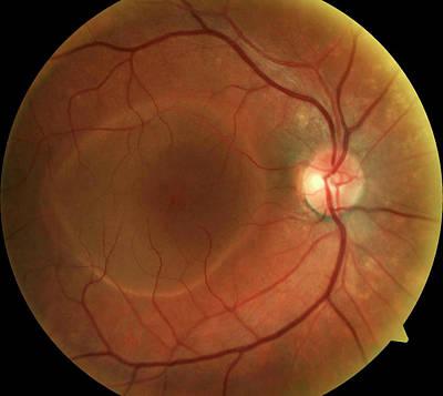 Retinal Pigment Epithelial Detachment Art Print by Mid Essex Hospital Services Nhs Trust