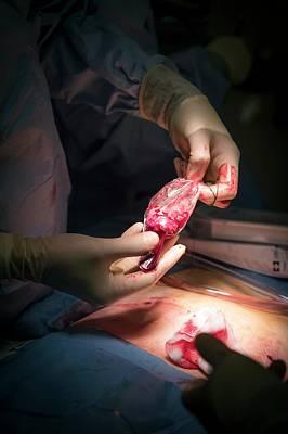 Robotic Prostate Surgery Art Print by Aberration Films Ltd