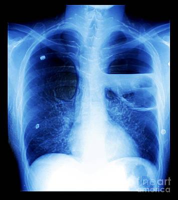 Photograph - Severe Bullous Emphysema by Living Art Enterprises, LLC