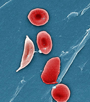 Sickle Cell Anemia, Human Rbcs, Sem Art Print by Science Source