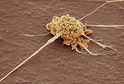 Electron Micrograph Photograph - Stem Cell by Steve Gschmeissner