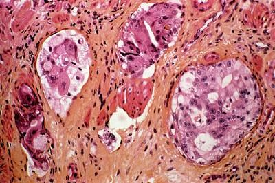 Gi Photograph - Stomach Cancer by Cnri