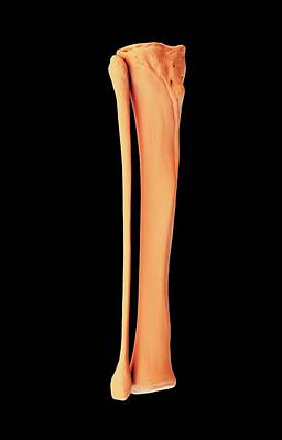 Tibia And Fibula Art Print by Science Artwork
