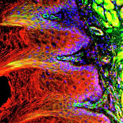 Tongue Papillae Art Print by R. Bick, B. Poindexter, Ut Medical School