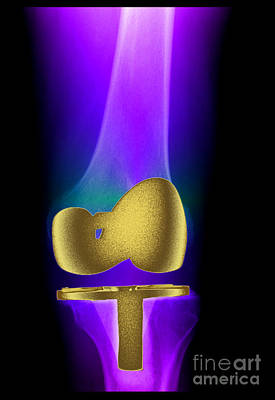 Photograph - Total Knee Replacement by Living Art Enterprises