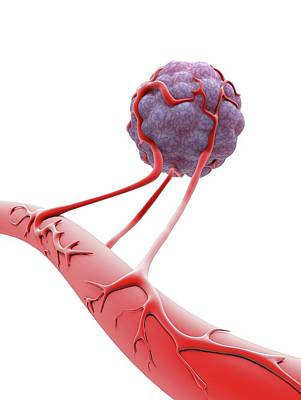 Physiology Photograph - Tumour Cell Blood Vessel Formation by Alfred Pasieka