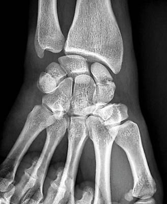 Wrist Fracture Art Print by Zephyr