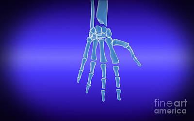 Human Limb Digital Art - X-ray View Of Human Hand by Stocktrek Images