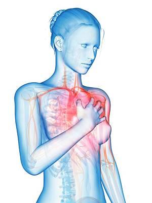 Human Heart Attack Art Print