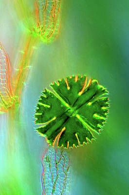 Desmid On Sphagnum Moss Art Print