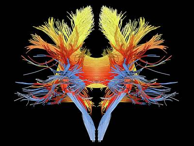 White Matter Fibres Of The Human Brain Art Print by Alfred Pasieka