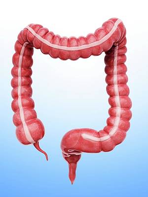 Sigmoid Colon Photograph - Large Intestine by Pixologicstudio