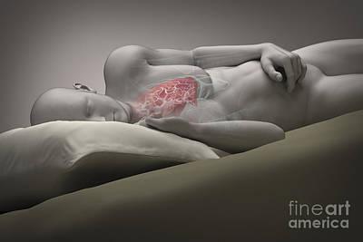 Sleep Disorder Photograph - Sleep Apnea by Science Picture Co
