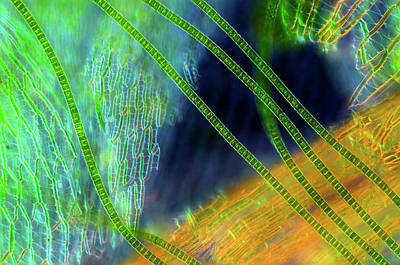 Desmids On Sphagnum Moss Art Print