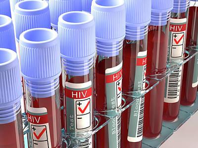 Blood Samples For Hiv Tests Art Print by Ktsdesign