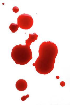 Blood Spatter Art Print by Cordelia Molloy