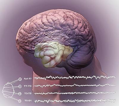 Hippocampus Photograph - Brain And Hippocampus by Zephyr