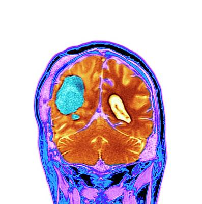 Brain Cancer After Surgery Art Print by Dr P. Marazzi