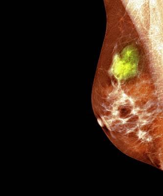 Breast Cancer Art Print by Dr P. Marazzi