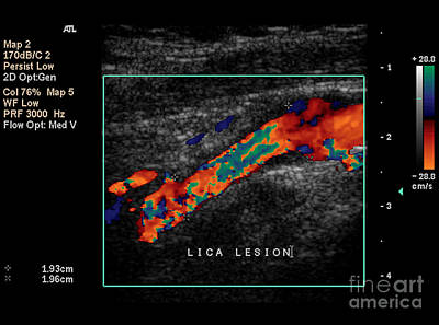 Photograph - Carotid Duplex Ultrasound Exam by Living Art Enterprises, LLC