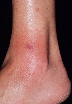 Cellulitis Art Print by Dr P. Marazzi/science Photo Library