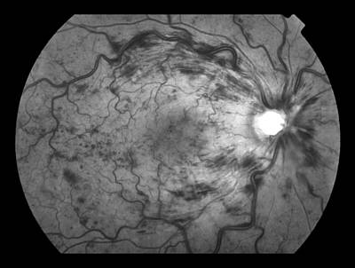 Photograph - Central Retinal Vein Occlusion by Paul Whitten