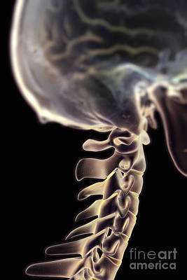 Photograph - Cervical Vertebrae by Science Picture Co