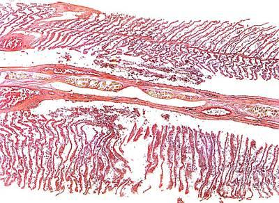 Dogfish Gill, Light Micrograph Art Print by Dr. Keith Wheeler