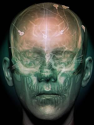 Electroencephalography Art Print