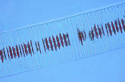 Fragilaria Diatoms Art Print by Marek Mis
