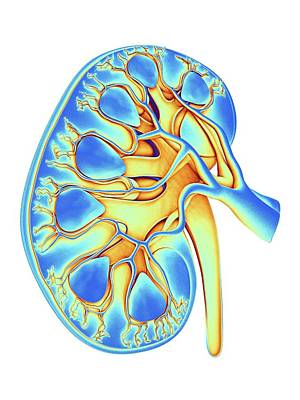 Digitally Generated Image Photograph - Human Kidney by Alfred Pasieka
