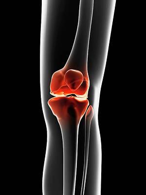 Biomedical Illustration Photograph - Human Knee Joint by Sebastian Kaulitzki
